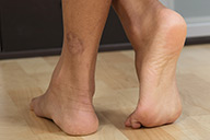 small preview pic number 6 from set 1612 showing Allyoucanfeet model Cataleya